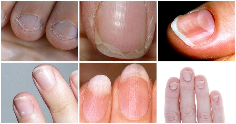 naglar som lossnar från nagelbädden
