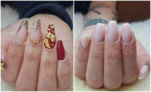 nagel släpper från nagelbädden