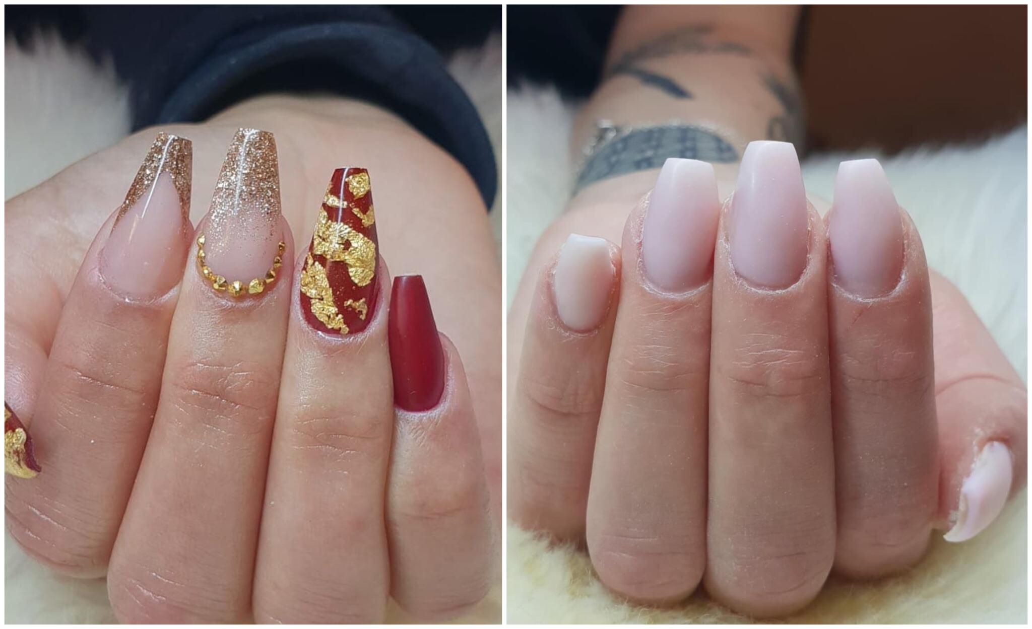 sjukdomar som drabbar naglar