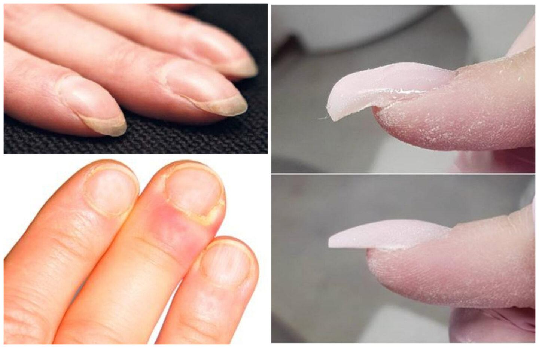 fått randiga naglar